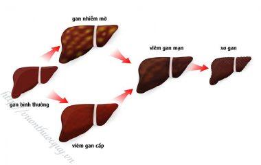 Xơ gan làm các tế bào của gan dần bị thay thế bởi các mô xơ khiến gan bị tổn thương và mất chức năng, gây ra nhiều biến chứng nguy hiểm có thể khiến người bệnh tử vong.