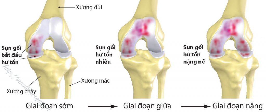 bệnh viêm xương khớp là gì