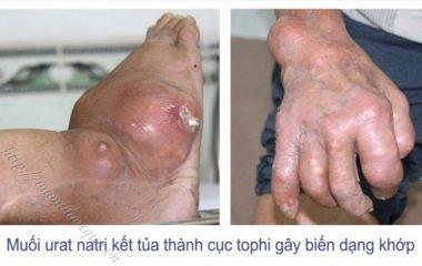 Biến chứng nguy hiểm của bệnh gout như: tổn thương xương khớp, nhiểm khuẩn, tổn thương thận và ảnh hưởng chức năng thận... có thể làm cho bệnh nhân tàn phế.