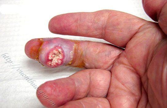 biến chứng kinh khủng của bệnh gout