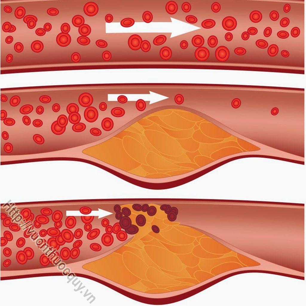 bệnh mỡ máu cao có nguy hiểm không