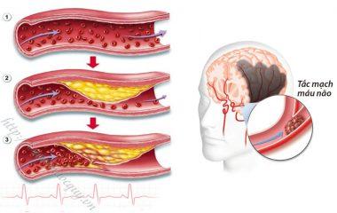 Mỡ máu cao là căn bệnh khá nguy hiểm, những biến chứng của bệnh mỡ máu gây nên một số bệnh như: tim mạch, đột quỵ và tai biến mạch máu não, có thể dẫn đến tử vong nếu không được cấp cứu kịp thời.