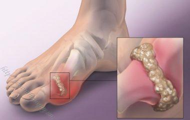 Bệnh gout là một bệnh rối loạn về chuyển hóa liên quan đến việc tăng sản xuất hoặc giảm đào thải chất acid uric trong cơ thể. Đây là một loại viêm khớp thường gặp ở nam giới...