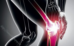 bệnh viêm xương khớp