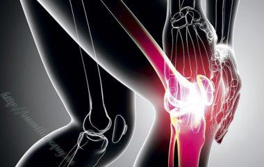 Bệnh viêm xương khớp là bệnh về khớp chủ yếu ảnh hưởng đến sụn. Sụn là mô trơn bao bọc các đầu xương của khớp. Sụn khỏe mạnh cho phép các xương trượt qua nhau.