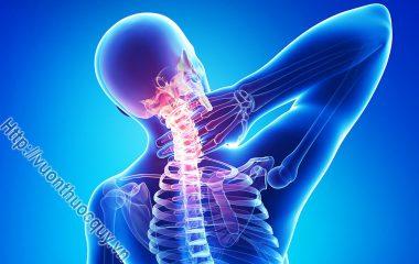 Bệnh Gai Cột Sống hay còn gọi là vôi hóa cột sống thường xuất hiện ở những người độ tuổi trên 40 có dấu hiệu cột sống bị thoái hóa, cột sống bị vôi hóa...