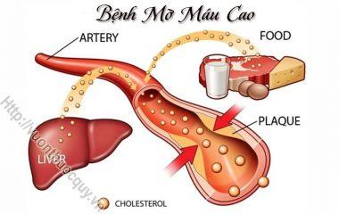 Bệnh mỡ máu cao hay còn tên gọi khác là máu nhiễm mỡ là căn bệnh do sự gia tăng đột biến của lượng mỡ trong máu được đánh giá bằng chỉ số cholesterol...