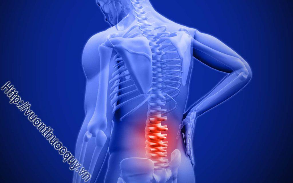 Bài Thuốc Hay Hỗ Trợ Điều Trị Đau Lưng