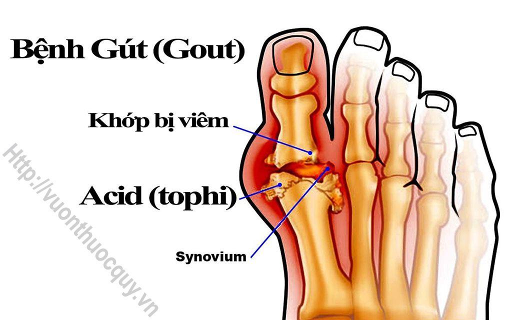 Bài Thuốc Hay Hỗ Trợ Điều Trị Bệnh Gout