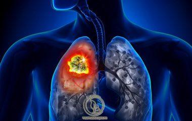 Ung thư phổi hay ung thư phế quản là một khối u ác tính phát triển từ biểu mô phế quản, tiểu phế quản, phế nang hoặc từ các tuyến của phế nang. Trên thế giới, hiện nay ung thư phổi đứng đầu trong các bệnh ung thư thường gặp...