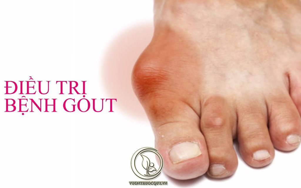 Dấu Hiệu Và Triệu Chứng Của Bệnh Gout