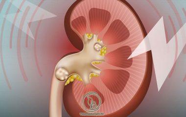 Bệnh sỏi thận là hiện tượng bị lắng cặn muối và khoáng chất bên trong thận. Bệnh do nhiều nguyên nhân gây ra và có thể thấy trong đường tiểu từ thận đến niệu quản và ở bàng quang...