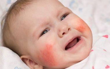 Trẻ bị nổi mẩn đỏ khắp người khiến cho nhiều phụ huynh hoang mang, lo lắng. Tình trạng này có thể là dấu hiệu của một số vấn đề như phát ban, viêm da, dị ứng… Ngoài ra, mẩn đỏ cũng là triệu chứng kèm theo của nhiều bệnh lý khác nhau...