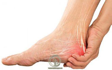 Đau gót chân là kết quả tự nhiên phổ biến của quá trình lão hóa ở người già. Hầu hết bệnh đau gót chân ở người lớn tuổi không quá nguy hiểm, tuy nhiên một số trường hợp nó cũng có thể trở nên nghiêm trọng và cần được điều trị...