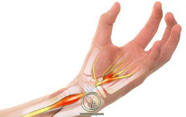 Bệnh gai xương cổ tay thuộc một dạng của hội chứng ống cổ tay do sự phát triển của các gai xương. Gai xương cổ tay gây ảnh hưởng trực tiếp đến chất lượng vận động, gây đau nhức và có khả năng để lại các biến...