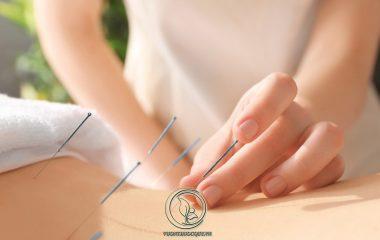 Chữa đau vai gáy bằng châm cứu là một phương pháp điều trị được nhiều người bệnh quan tâm. Ưu điểm chính của phương pháp này giảm thiểu tối đa tác dụng phụ của thuốc, ít gây biến chứng và hiệu quả lâu dài...
