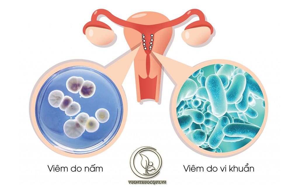 Lây Nhiễm Do Tiếp Xúc Với Mầm Bệnh