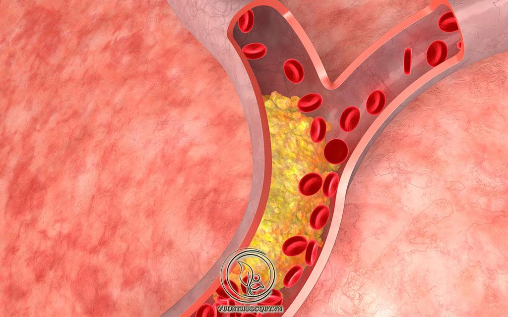 Cholesterol Là Gì ?