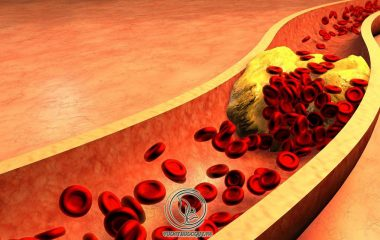 Máu nhiễm mỡ là một bệnh lý rất nhiều người mắc hiện nay, lại có thể dễ dẫn tới các căn bệnh nguy hiểm khác như cao huyết áp, tai biến mạch máu não, nhồi máu cơ tim, xơ vữa động mạch, tiểu đường…
