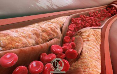 Tăng cholesterol trong máu là một trong những nguy cơ gây ra xơ vữa động mạch, bệnh mạch vành. Xơ vữa động mạch cảnh cũng là một nguyên nhân dẫn đến đau tim, đột quỵ. Vì sao lại có tình trạng cholesterol cao trong máu...