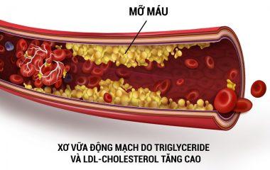 Rối loạn mỡ máu triglyceride ngày càng trở thành căn bệnh phổ biến và xuất hiện ở nhiều độ tuổi. Bệnh nếu không điều trị sớm cũng dễ gây ra những biến chứng ảnh hưởng tới sức khỏe. Cùng tìm hiểu nguyên nhân và cách lựa chọn...